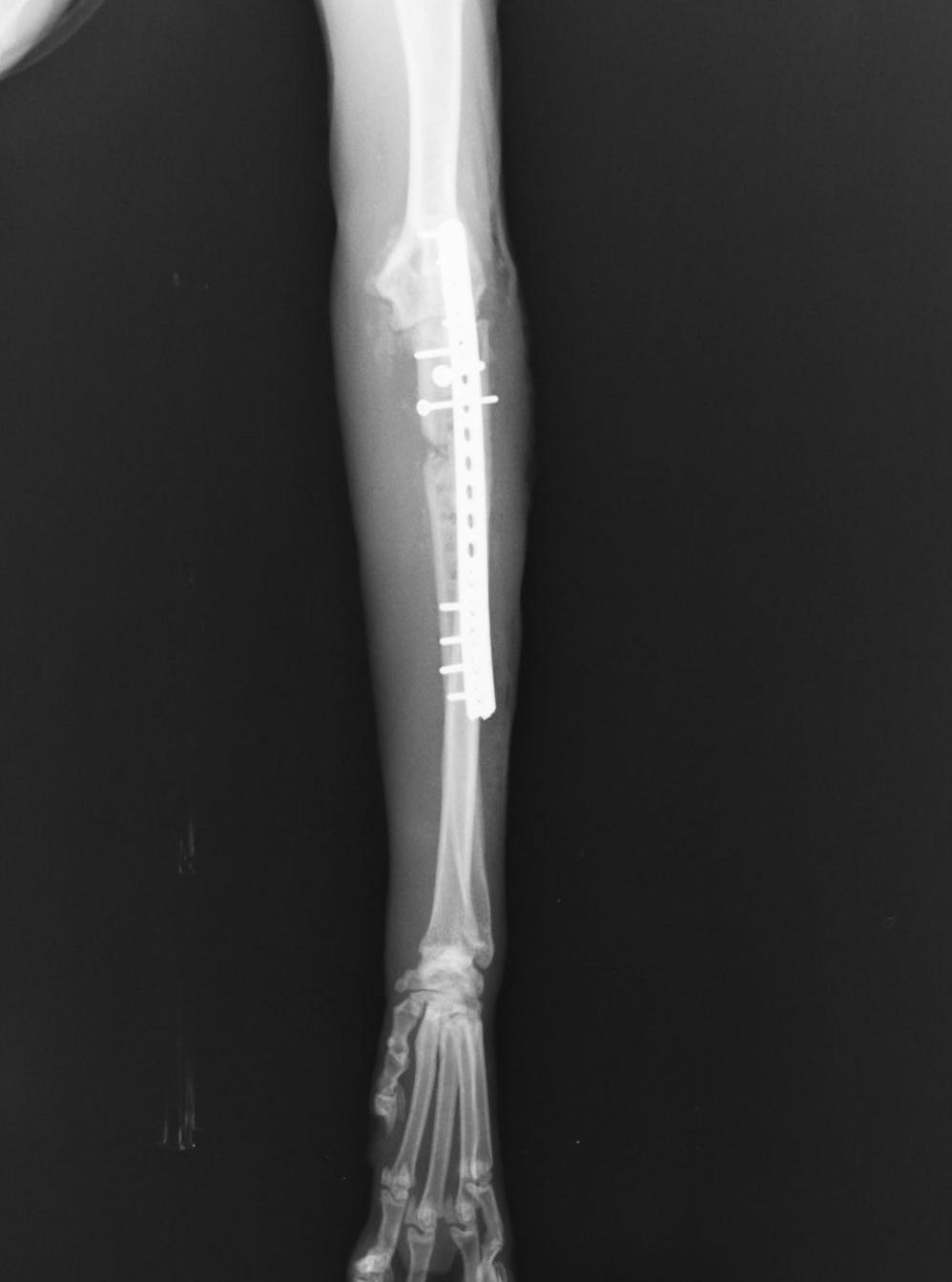肉腫 症状 骨